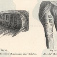 Tatowirung der Aussenseite des linken Oberschenkels…
